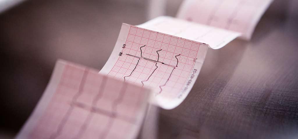 ausgedrucktes EKG mit dargestellter Herzfrequenz