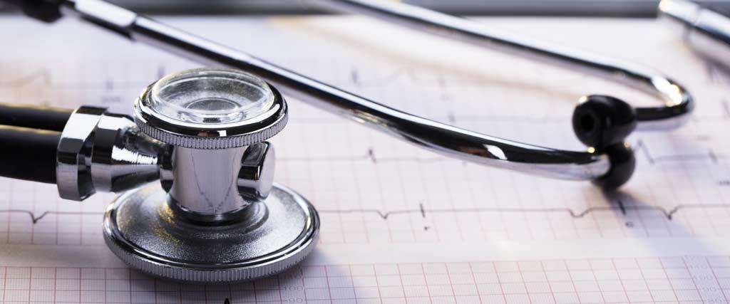Stethoskop liegt auf Papier mit Herzfrequenzen als Symbol für ein Langzeit-EKG.